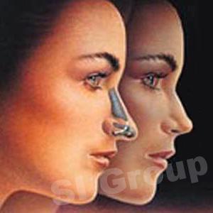Пластическая операция носа в Таиланде