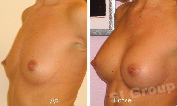 Пластическая операция по изменению формы и размеров груди в Таиланде