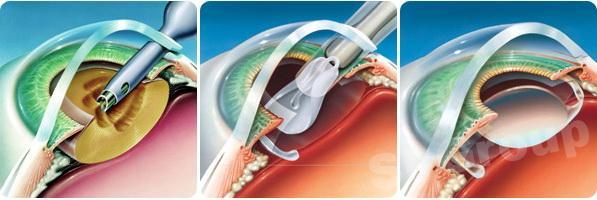 Способы операций по лечению катаракты